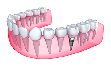 denal implants